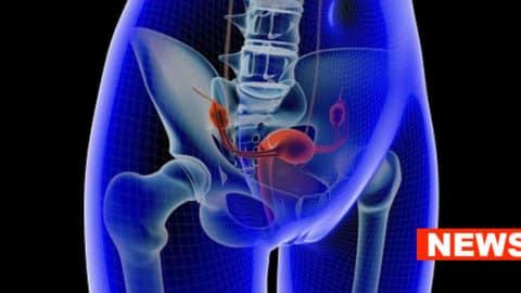 PTSD Increases Ovarian Cancer Risk, Study Claims