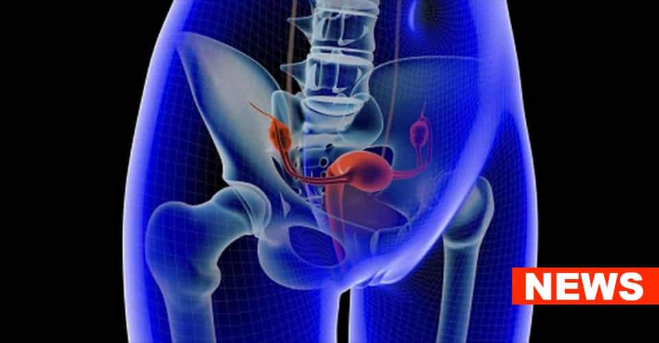 PTSD Increases Ovarian Cancer Risk Study Claims