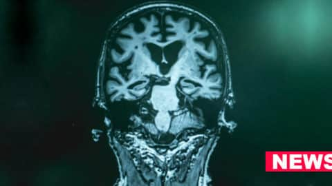 Scientists Find New Method To Predict Early Alzheimer's With Nearly 100% Accuracy