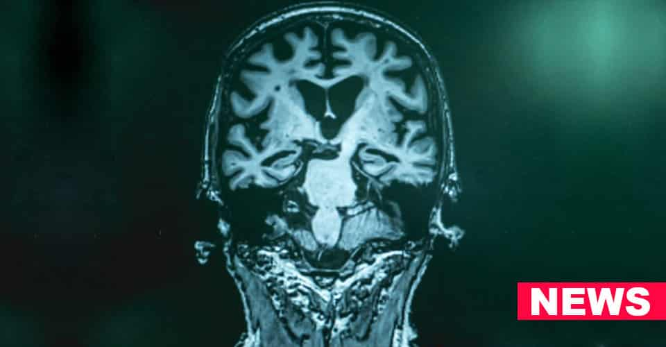 Scientists Find New Method To Predict Early Alzheimer News